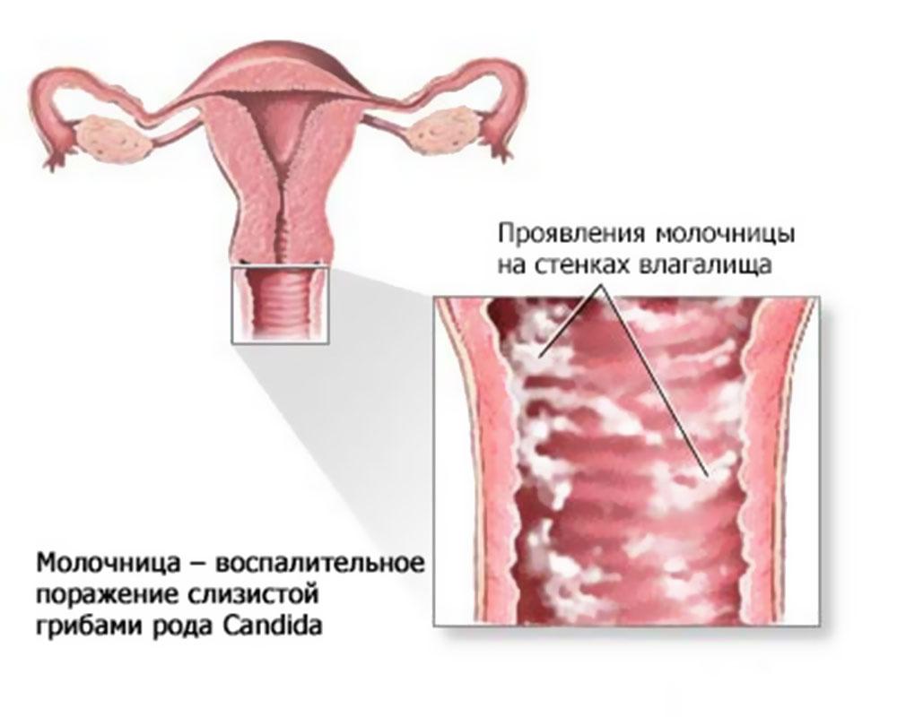 Гинекология. Что такое молочница - «Московский Доктор»