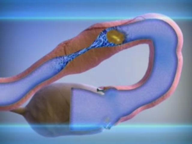 гинекология непроходимость труб лечение