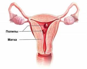 Полипы у женщины по гинекологии симптомы и лечение